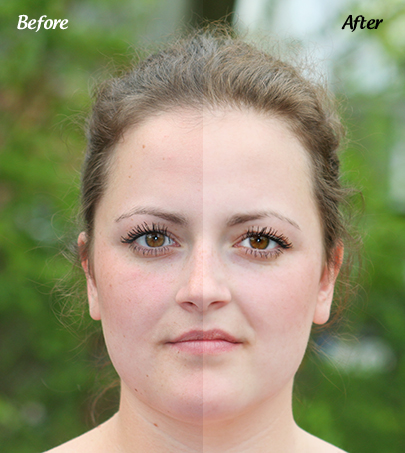 Skin Enhancement Before & After